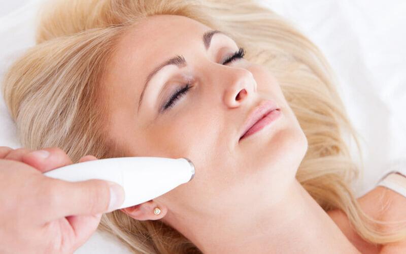 Simplicité Skin Laser Treatment for 1 Person