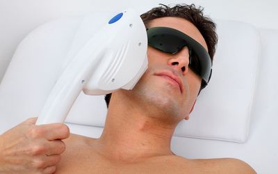 Men's 1-Year (12 sessions) Sharplight IPL Hair Removal for 1 Person (Large Area)