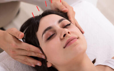 Cosmetic Facial Acupuncture for 1 Person (1 Session)
