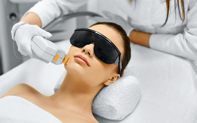 Q-Switch or Spectra Pigmentation Laser Treatment for 1 Person