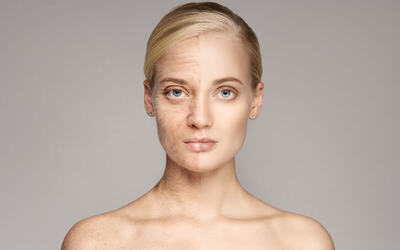 90-Minute Age Lifting Facial for 1 Person