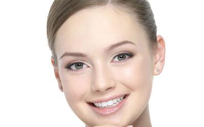 IPL Hiperpegmentasi / Skin Rejuvination