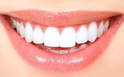 Full Mouth Whitening / Bleaching (Scaling + Airflow + Polishing + Whitening / Bleaching)