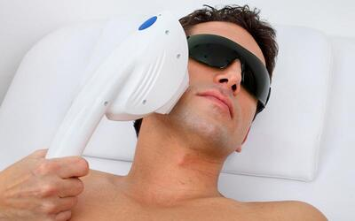 Men's 1-Year Sharplight IPL Hair Removal for Small Area for 1 Person (12 Sessions)