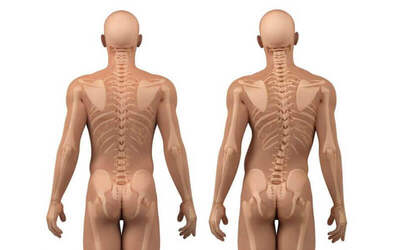 Scoliosis Screening and Rehabilitation Program for 1 Person