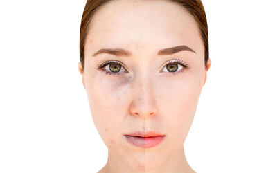 1-Hour Anti-Pigmentation Laser Treatment for 1 Session