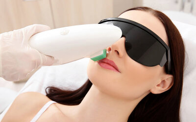 Upper Lip DPL Hair Removal for 1 Person