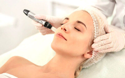 Signature Facial Microdermabration