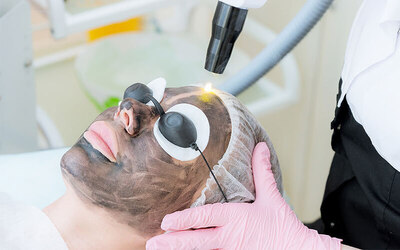 Carbon Laser Facial Treatment for 1 Person