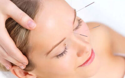 1x Acupuncture Facial + Collagen Serum + Free Doctor Consultation
