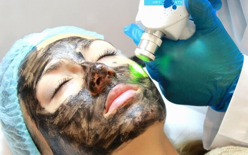 75-Minute Carbon Peel Laser Treatment for 1 Person