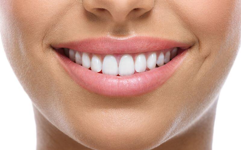 Penambalan Gigi Sederhana Dengan Komposit & Sinar