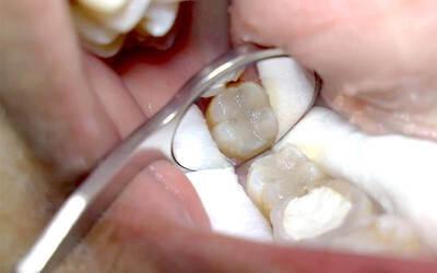 Penambalan Sewarna Gigi Belakang dengan Laser + Konsultasi