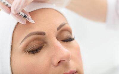 1x Botox + Forehead Wrinkle + Eye Wrinkle + Konsultasi Dokter
