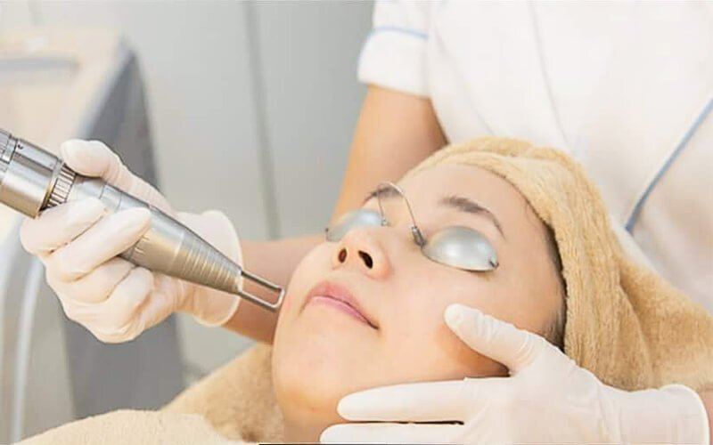 [Flash Deal] 45-Min Q-Switched Yag Laser Facial for 1 Person