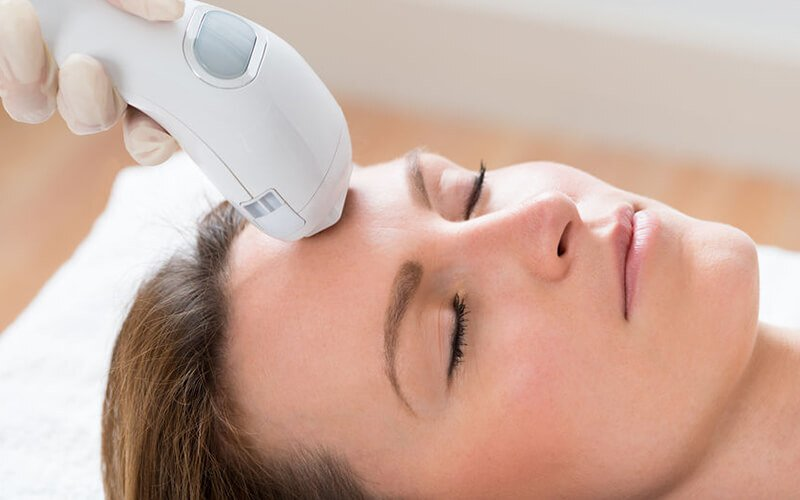 1x Facial High Frequency for Acne