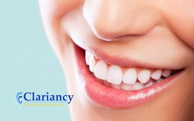 Teeth Whitening for 1 Person
