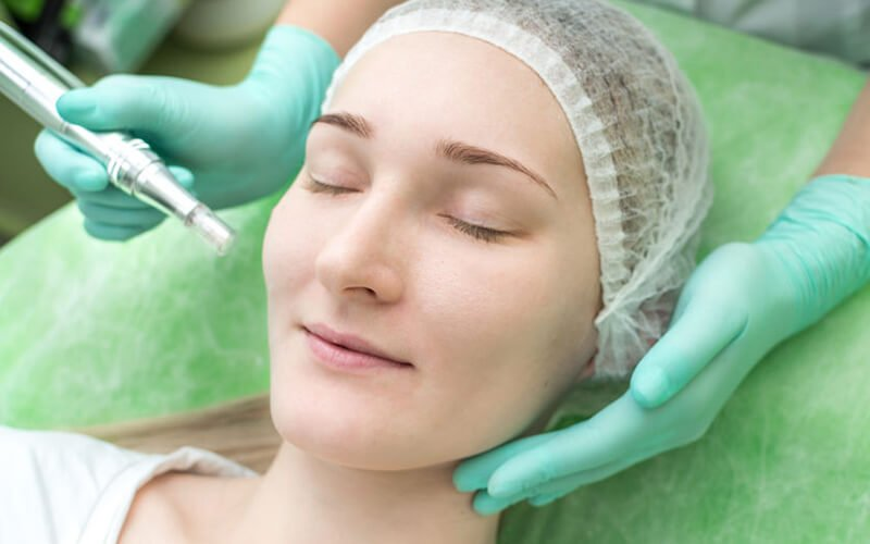 2x Microneedle Scar Therapy + Phototherapy Mask