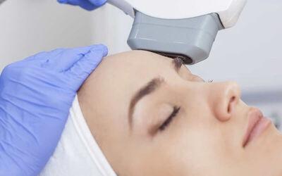 V-Lift Treatment (HIFU) Full Face + Free Konsultasi Dokter