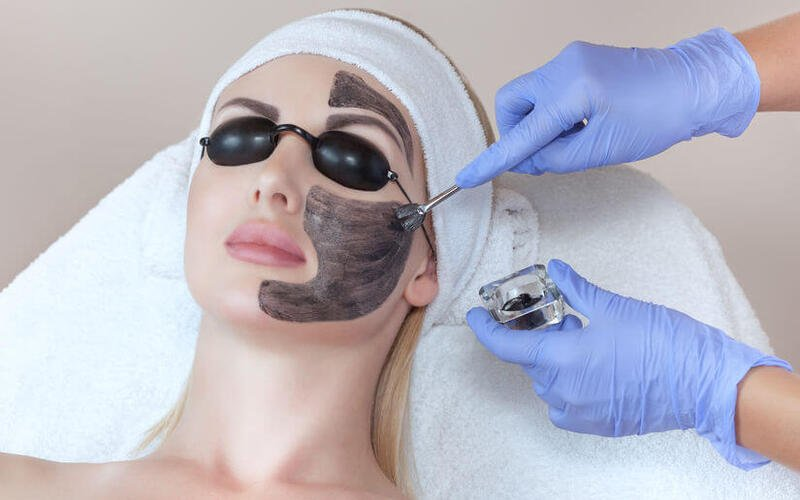 1-Hour Carbon Peel Laser Facial for 1 Person