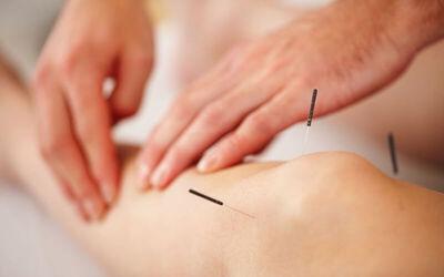 Akupunktur Kesehatan (Nyeri, Migrain, Vertigo, Maag)
