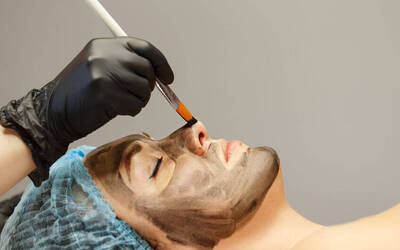 1.5-Hour Carbon Peel Laser for 1 Person