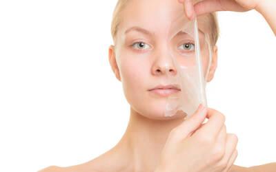 Peeling Acne/ Jerawat