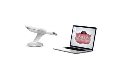 3D Digital Intraoral Impression Scanner