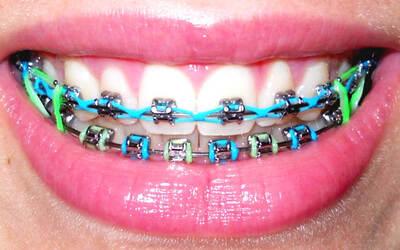 Metal Orthodontic + Color Braces