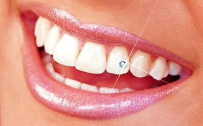 Aplikasi Diamond Teeth untuk 1 Gigi Pemeriksaan dengan Intracamera + Konsultasi