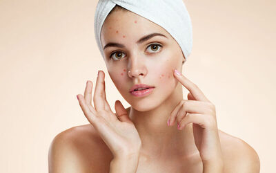 1.5-Hour Acne Vulgaris Facial Therapy for 1 Person