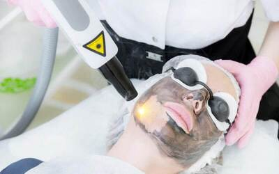 [12.12] 1-Hour Carbon Peel Laser Facial for 1 Person