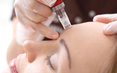 75-Minute Nano Micro Needling Facial Treatment for 1 Person