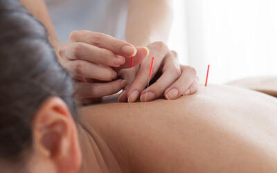 1-Hour TCM Yang Sheng Therapy with Acupuncture and Cupping / Gua Sha for 1 Person (3 Sessions)