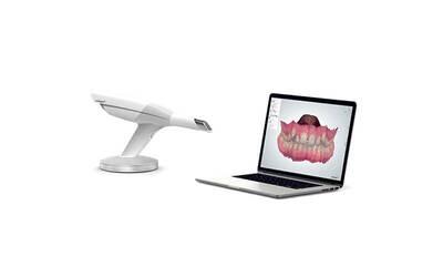 3D Digital Intraoral Impression Scanner